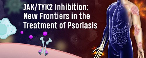 JAK/TYK2 Inhibition: New Frontiers in the Treatment of Psoriasis Banner